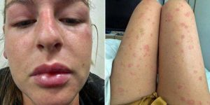 Woman's 'mystery allergy' leaves her covered in hives, embarrassed to leave home