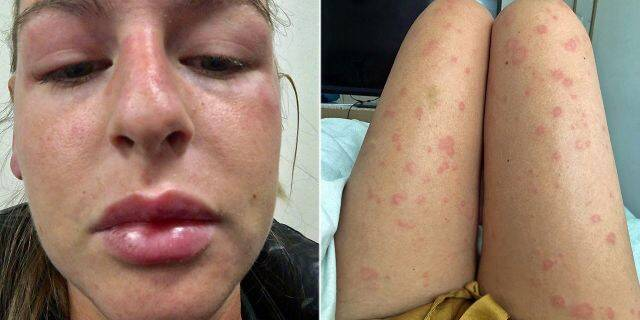 Flare-ups leave her suffering from a swollen face and covered in hives.