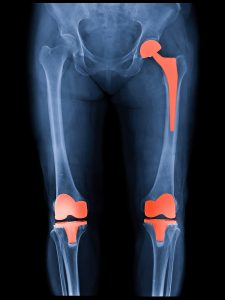 Is obesity a reason to avoid joint replacement surgery?
