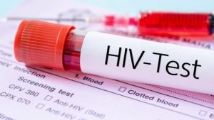 Louisiana experiences major drop in new HIV cases, its lowest in a decade