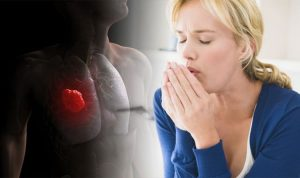Lung cancer symptoms: Seven signs your cough could be signalling the deadly condition