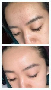 Redditor Shares Transformative Fungal Acne Routine — See Her Before & After Photos – Allure Magazine