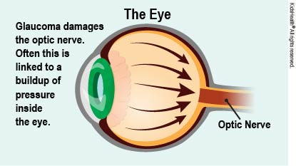 When pressure builds inside the eye, it can lead to glaucoma, as explained in                the article.