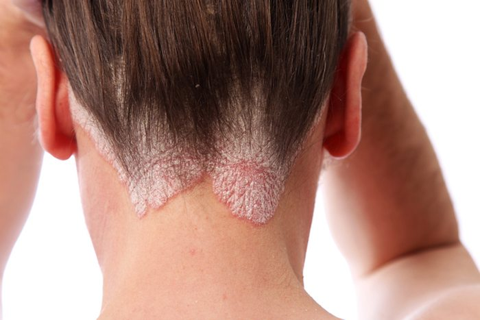 psoriasis scalp 19 beauty products this makeup artist with psoriasis swears by healthista