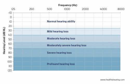 Degrees of hearing loss on an audiogram